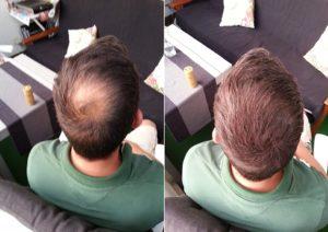 Die Handhabung vom Haarpuder Testsieger im Test und Vergleich